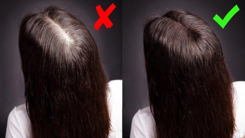 Как предотвратить выпадение волос в домашних условиях.