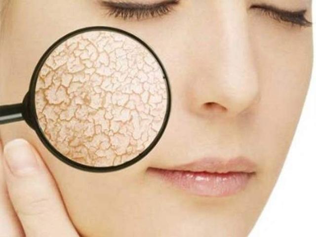 Причины сухой кожи и правильный уход за ней