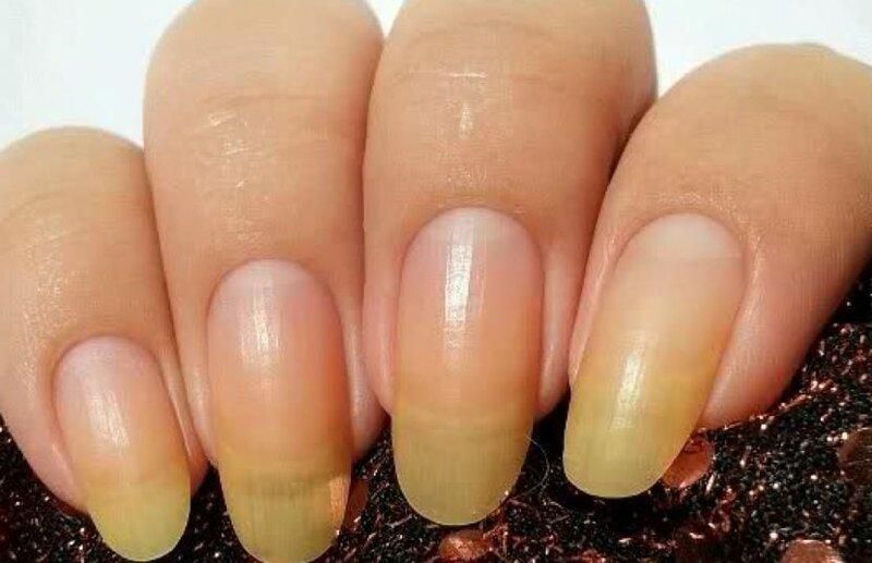 Причины пожелтения ногтей на руках